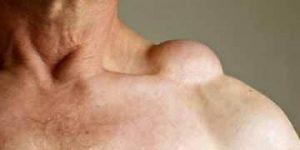 Tipos de neoplasia